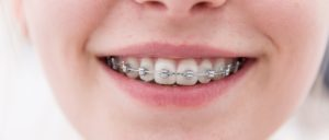 Helotes Pediatric Dentistry & Orthodontics is happy to offer free orthodontic consultations.