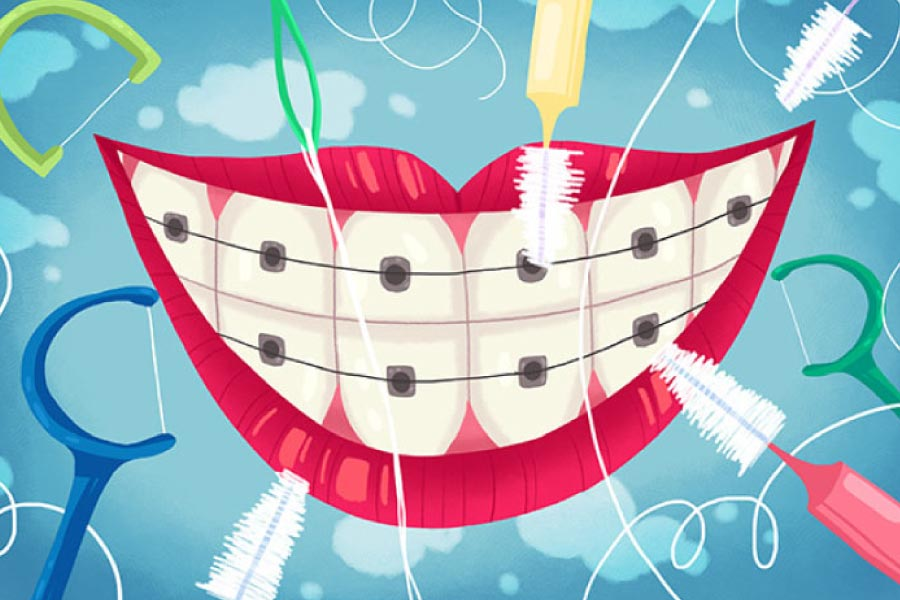 Cartoon smile with braces and teeth cleaning tools.